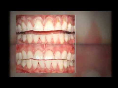 Oral Surgeon Key Biscayne - Keep Your Smile Healthy