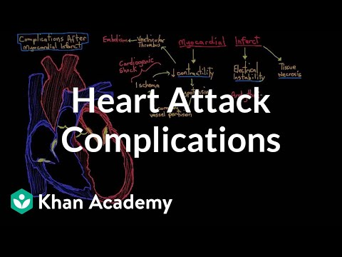 Complications after a heart attack (myocardial infarction) | NCLEX-RN | Khan Academy