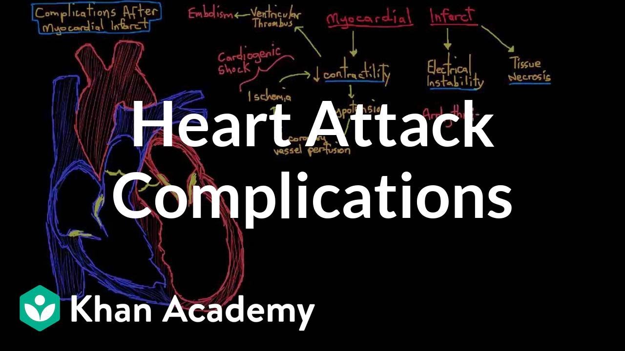 complications after a heart attack myocardial infarction nclex