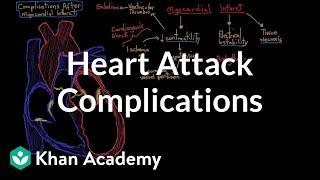 Complications after a heart attack (myocardial infarction)