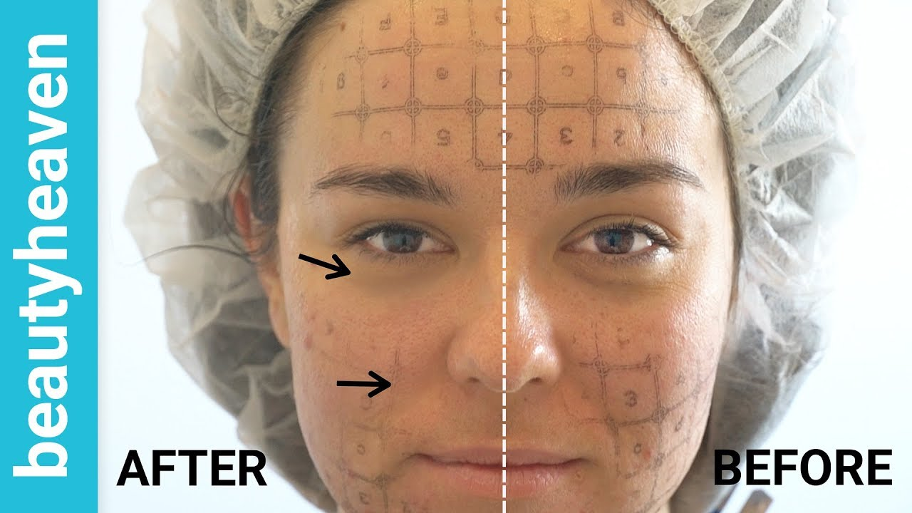 Thermage Review and Thermage Before and After