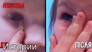 Шестилетнюю Диану Гриб избавили от постоянного скапливания гноя в глазках