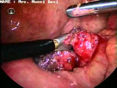 burst appendix - youtube, Cephalic Vein