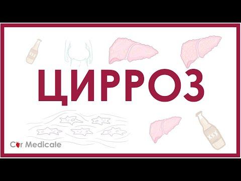 Цирроз печени - причины, патогенез, симптомы, осложнения