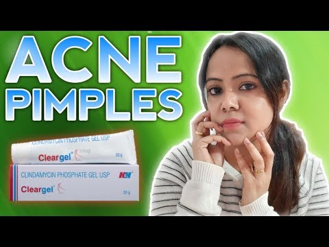 Get Rid Of *Acne & Pimples* Effective Clear Gel || Review || Clear Gel ||