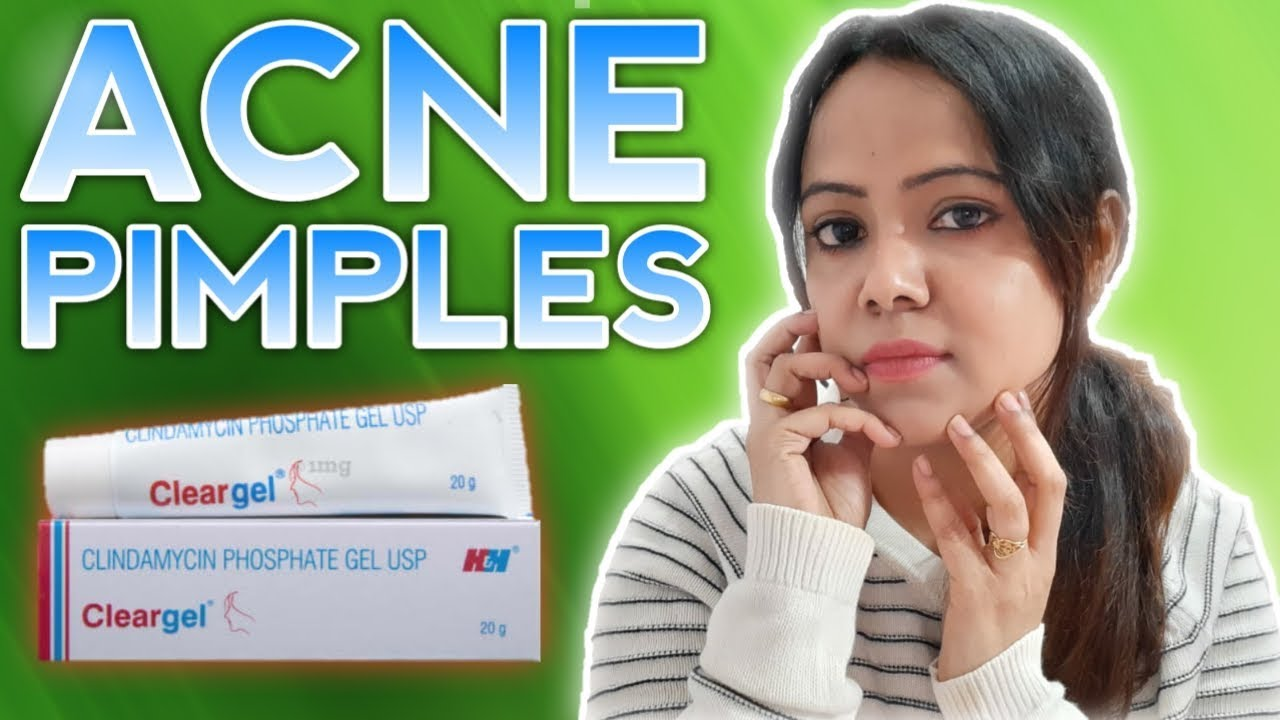 Get Rid Of Acne Pimples Effective Clear Gel Review Clear Gel Youtube