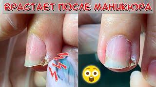 Коррекция вросшего ногтя на руке После маникюра воспалился палец