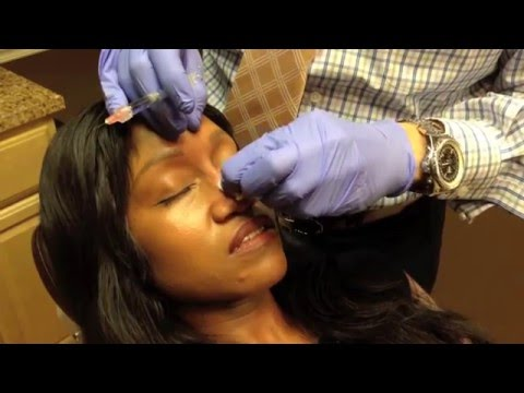 Non-Surgical Nose Job Rhinoplasty By Washington DC Specialist Dr. Naderi