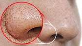 Удаление подошвенной бородавки. - YouTube