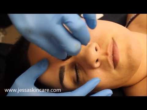 Facial Hair Removal | Sugaring Waxing Eyebrows, Lip, Nose Sugar Wax | Esthetician School