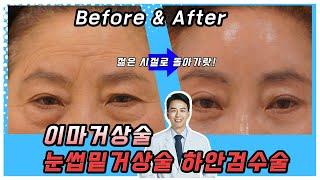 이마거상술, 눈썹 밑 거상술, 하안검 수술 3종세트 변…