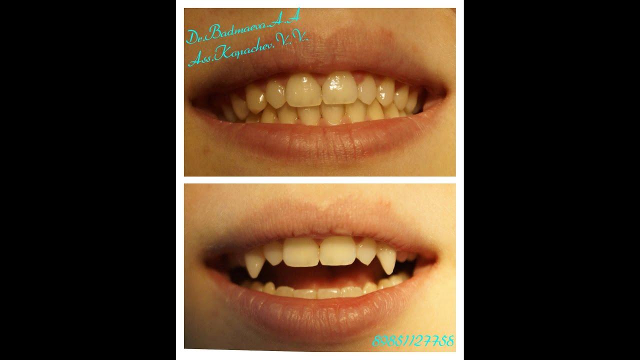 Как сделать вампирские клыки в домашних условиях фото 475
