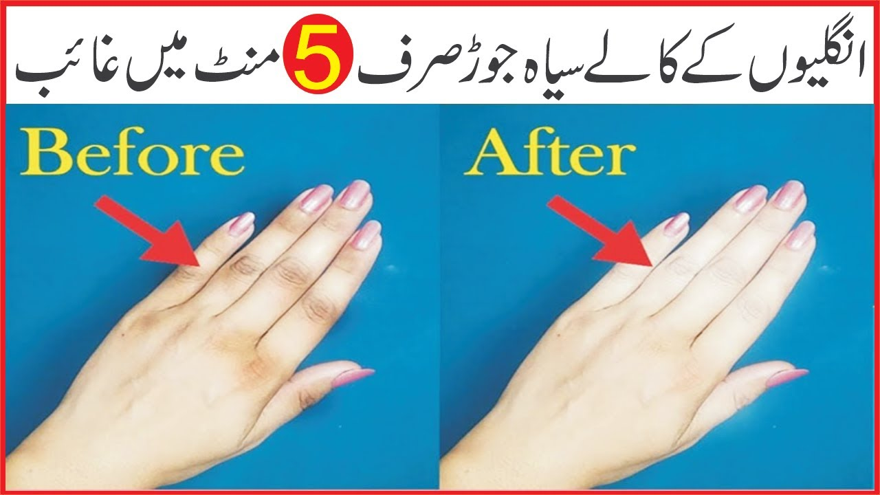 How to Get Red of Dark Knuckles And Get Brighten Hands & Feet In Urdu/Hindi