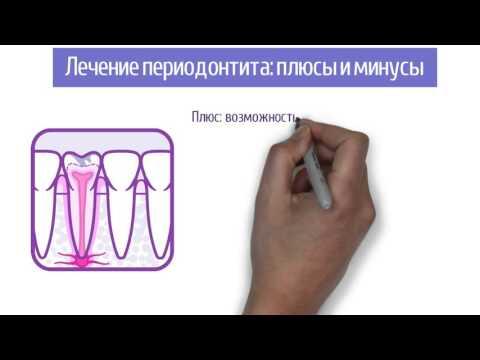 Диагноз «Периодонтит»: лечение или имплантация?
