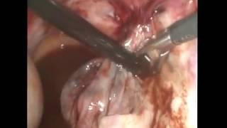 Endometrioma Kistektomi, Kombine Teknik, Dr Turan Çetin