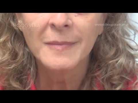 Relleno de labios (15003)