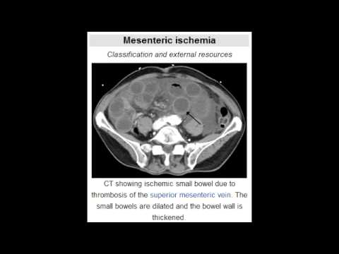 Acute Mesenteric Ischemia (Adult), Intussusception (Infants)