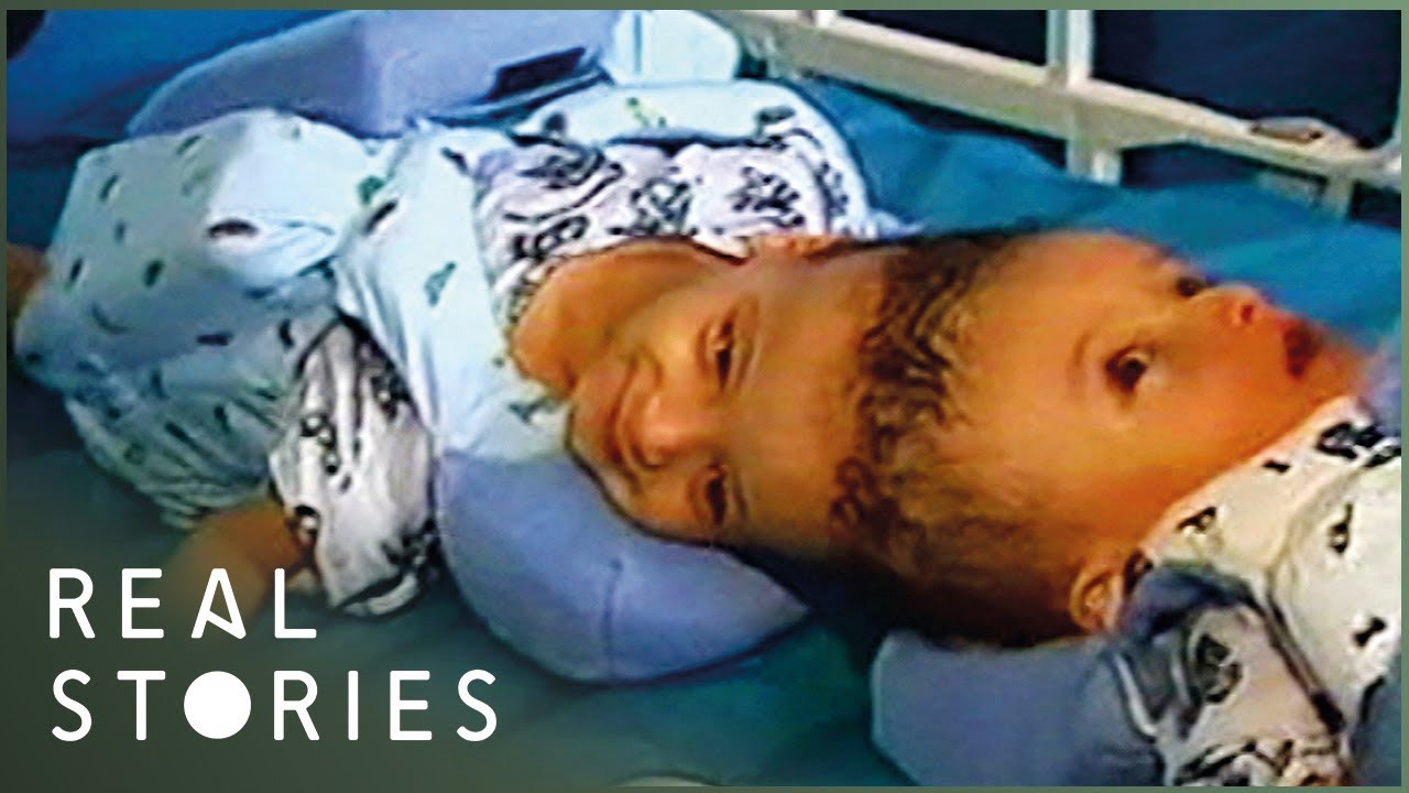 The Boys Joined At The Head | Journey To Separation (Conjoined Twins Documentary) | Real Stories