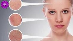 hqdefault - Acne Care Disease Fusion Inflamation Nourifusion Skin