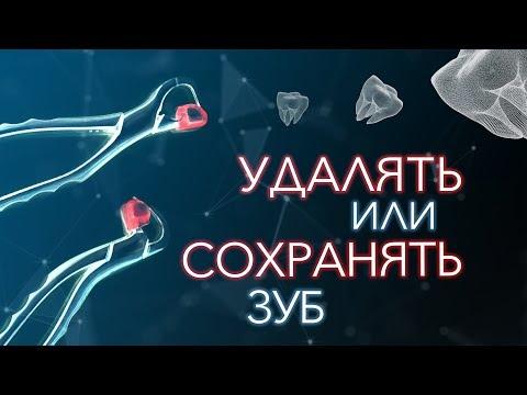 Если болит зуб. Удалять? Или лечить зуб? Отзыв врача стоматолога. Владивосток.