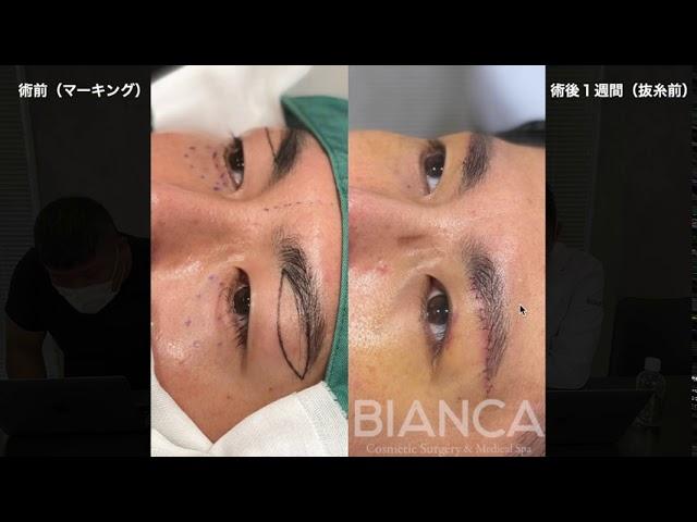 【よくわかる眉下切開+上瞼脂肪取り、目の下クマたるみ取り注入症例解説】BIANCA CLINIC