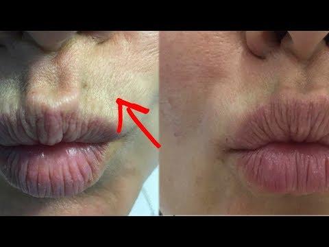 Как убрать морщины над верхней губой в косметологии