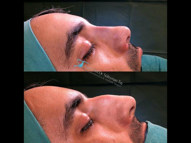 Male rhinoplasty   closed rhinoplasty
