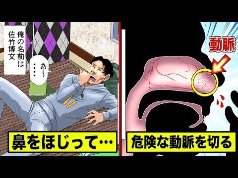 鼻をほじって瀕死…太い血管を切った男を漫画にした。