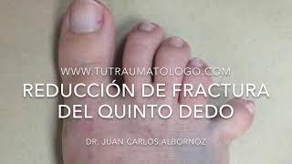 Morado dedo meñique e hinchado del pie