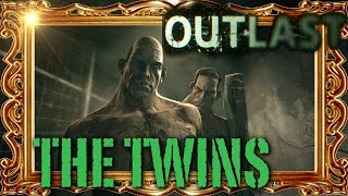 OUTLAST - Digital Portrait of The Twins: Conjoined Scars, Inbred South Africans, the Duponts