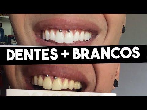 Como Clarear Os Dentes Em 20 Minutos Markin Carvalho