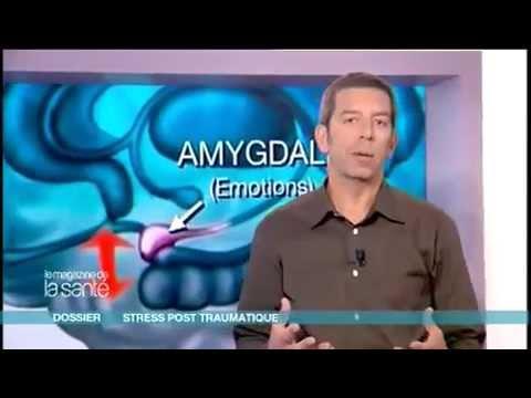 syndrome de stress post-traumatique agitation anxiété