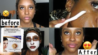 MY SKINCARE ROUTINE   Derma-planing, ConchaNacar for dark spots