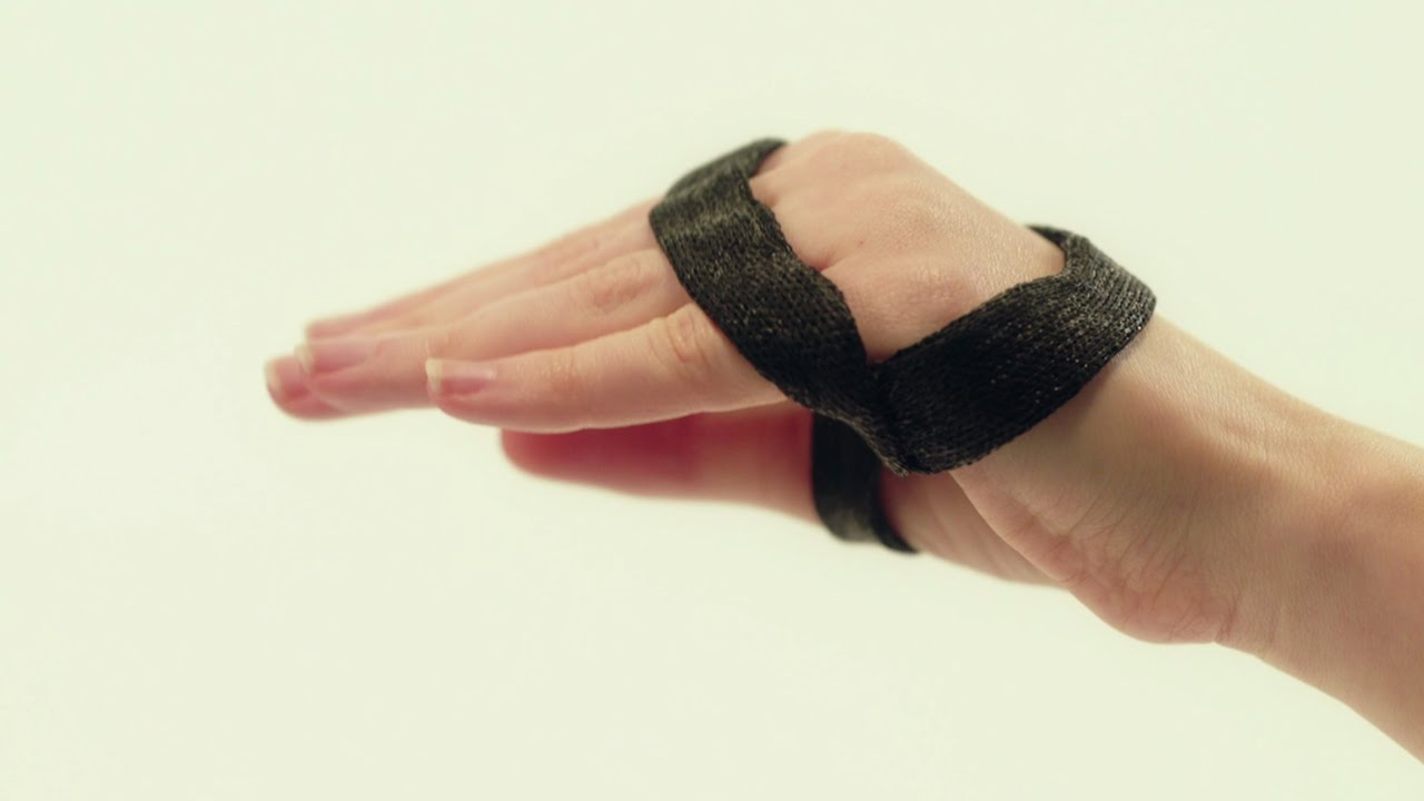 Anti Claw Hand Orthosis Including Thumb Orficast Instructional