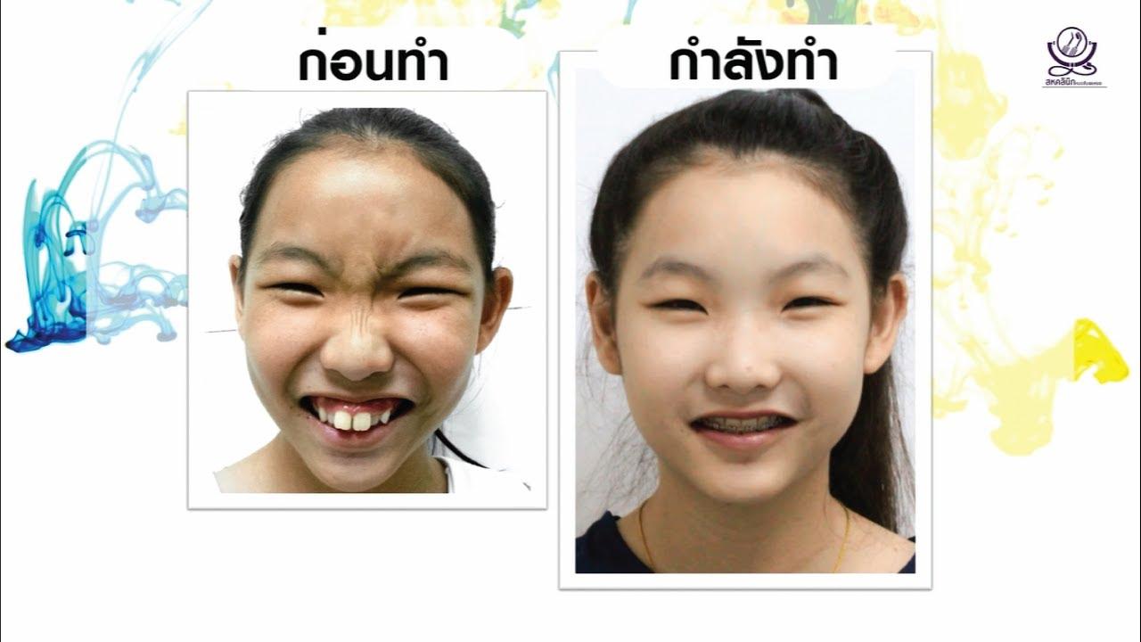 จัดฟัน จัดโครงสร้างใบหน้า - เคสโครงหน้าไม่ได้สัดส่วน หน้าตก ฟันเหยิน โดยไม่ผ่าตัด