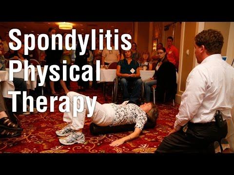 Exercise for Spondylitis Patients