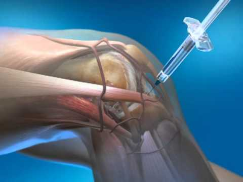 Knee Injection with Euflexxa - Non-surgical Knee Pain Relief