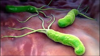 Анализ на хеликобактер положительный после курса антибиотиков - почему?