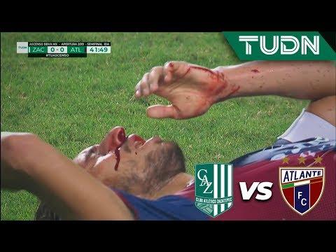 ¡Impactante lesión de Sosa!  | Zacatepec 0  - 0 Atlante | Ascenso MX - Semifinal Ida - AP 19 | TUDN