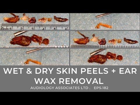 WET & DRY SKIN PEELS + EAR WAX REMOVAL - EP 182