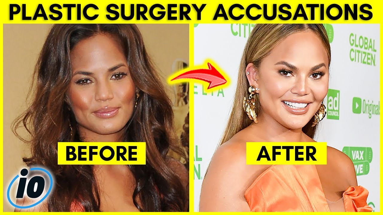Top 10 Influencers Who Claim They Haven't Had Plastic Surgery