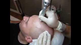 Micropigmentare scalp Artist Zarescu Dan ZDM clinica SlimArt roller 56 ace Oron57 a