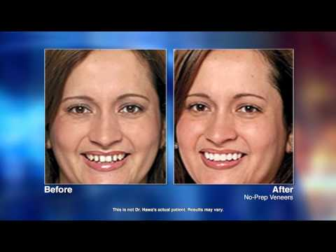Cosmetic Dentistry with Sterling, VA dentist Nader Hawa, DMD
