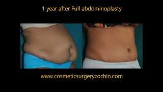 Tummy Tuck Abdominoplasty India Kerala