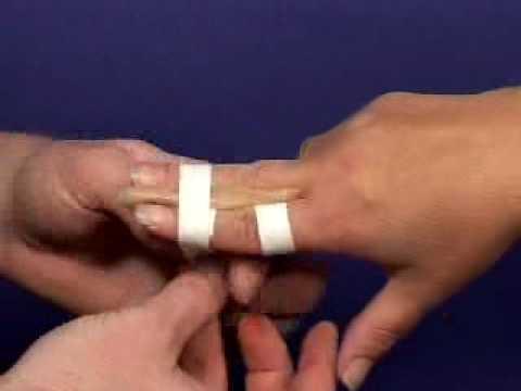 forstuvet finger