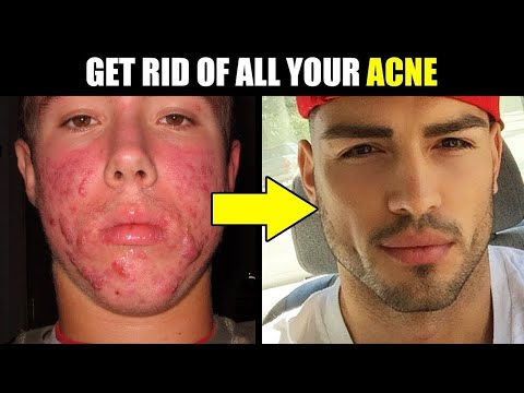 HOW to INSTANTLY ELIMINATE ACNE ... FAST! | How to Get Rid of Acne & Pimples