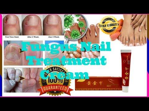 Nail Fungus Cream | Nail Fungus Home Treatment | Nail Fungus Products📍 Natural Nail Fungus Treatment