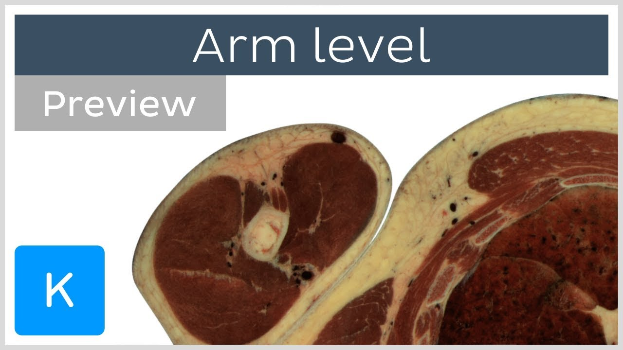 Download Cross sections of the upper extremity - upper arm (preview) - Human Anatomy | Kenhub