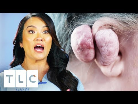 Dr. Lee Removes 14 Oz Keloid From Woman's Ear | Dr. Pimple Popper
