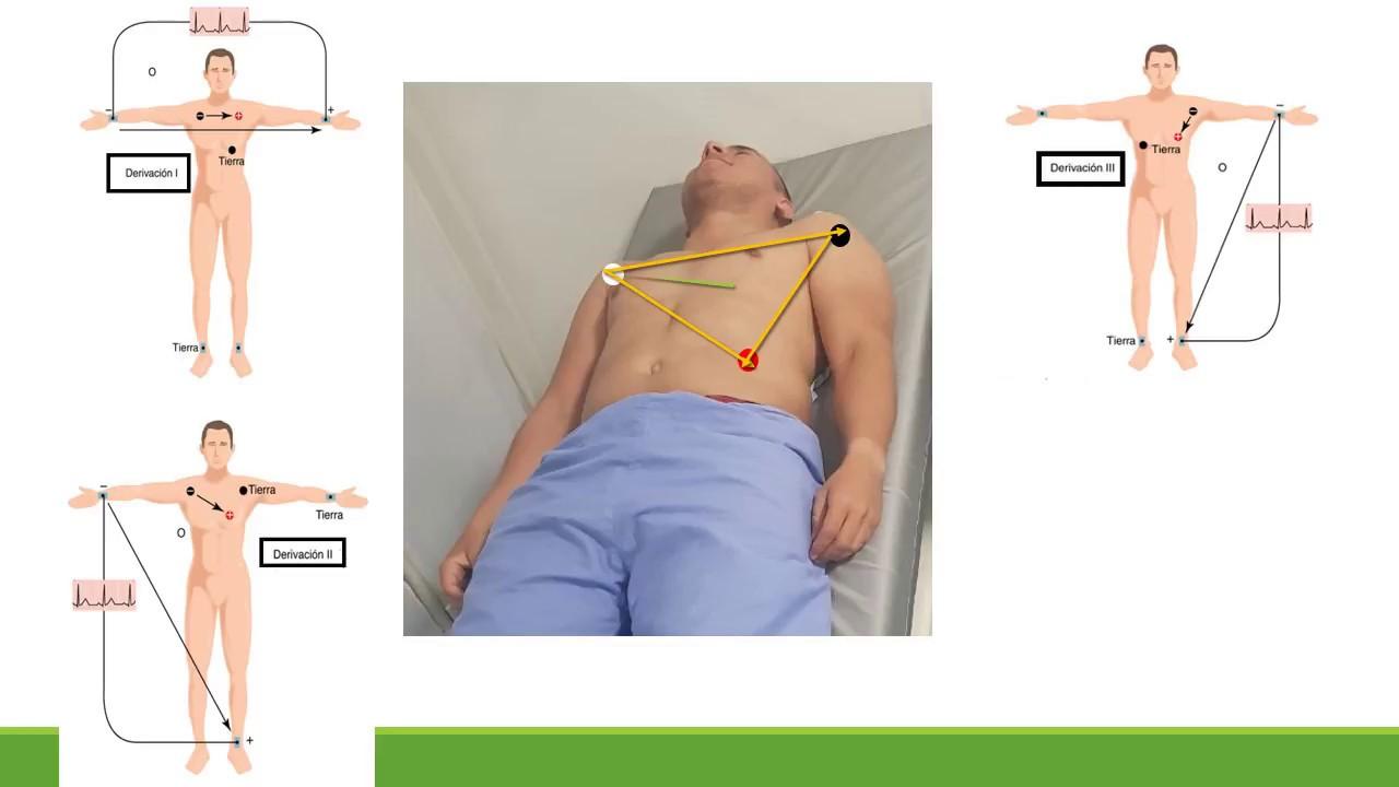 ELECTRODOS BIPOLARES Y MONOPOLARES DEL EKG